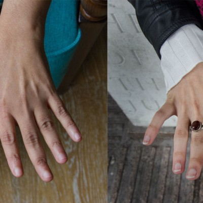 The Future In Your Hands – a photography exhibition celebrating musculoskeletal conditions