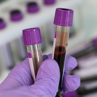 Blood Samples to Help Select the Right Early Phase Clinical Trials for Cancer Patients