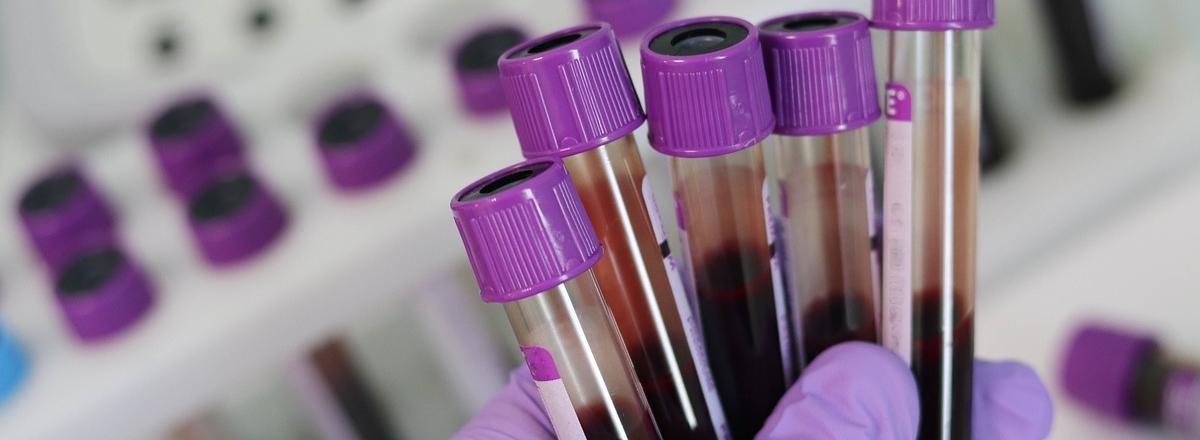 Hand holding several blood sample vials