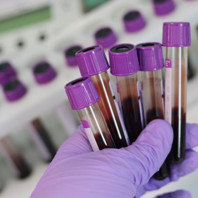 New test offers breakthrough in early detection of endometrial cancer